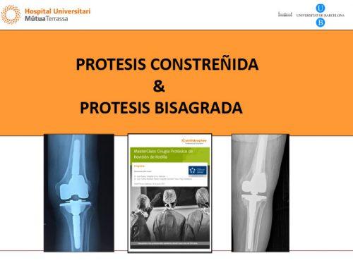 Protesis Constreñida & Protesis Bisagrada